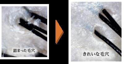 ヘッドスパのサムネイル画像